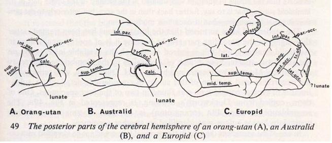 aborigènes d'Australie cerveau Australian aborigines brain